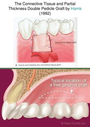植牙補牙肉說明圖