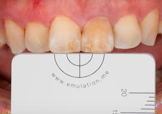 四環黴素牙齒美白|丰采美學牙醫