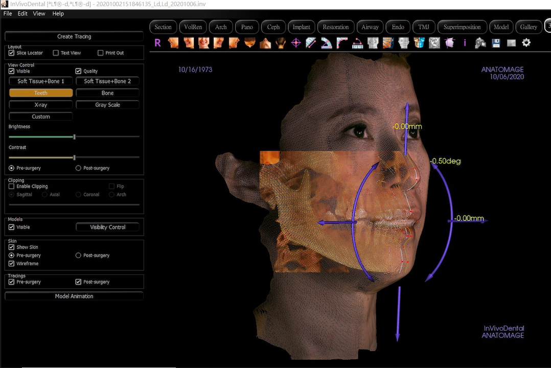 3D 電腦斷層植牙|馬永昌醫師