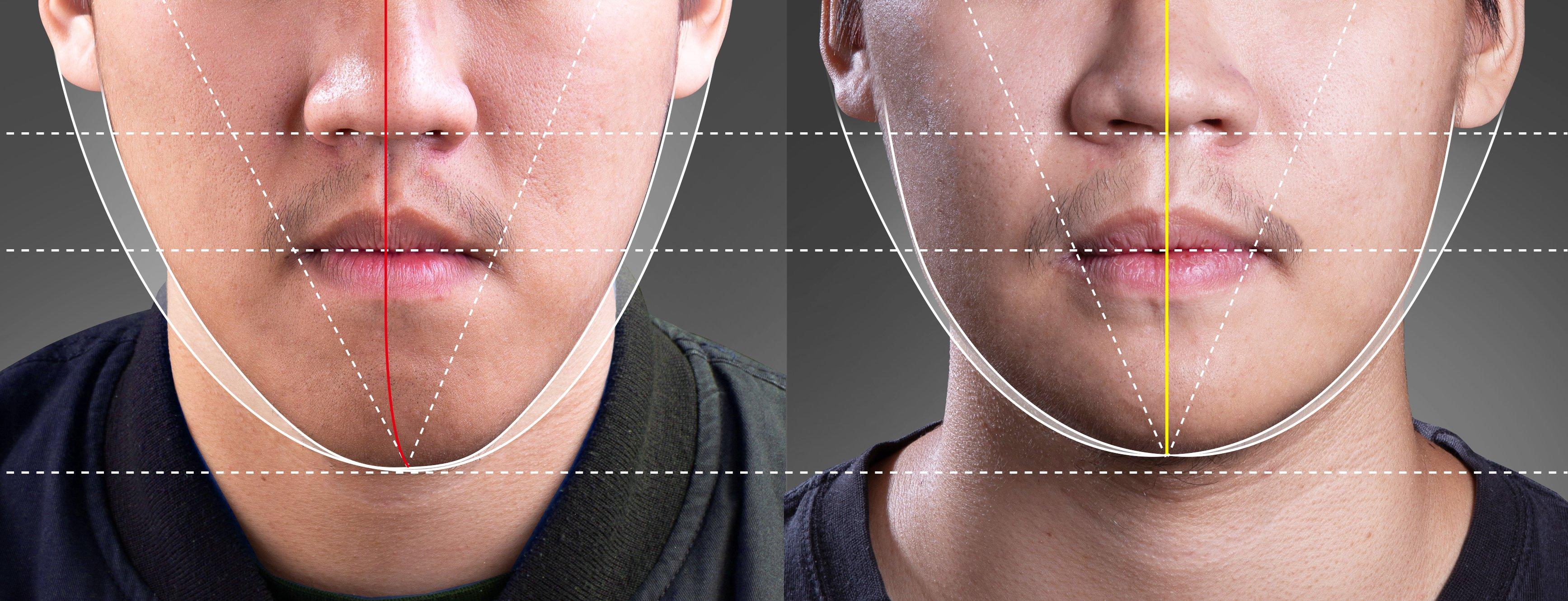 合併正顎手術的案例 | Dr.EMMA蔡宜均醫師