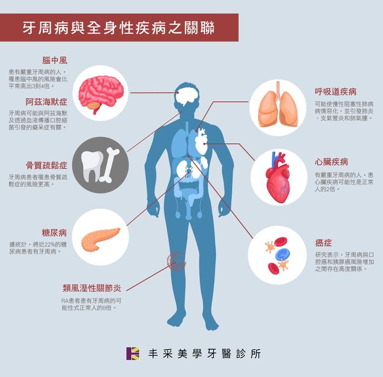 牙周病與全身疾病圖表 丰采美學牙醫診所