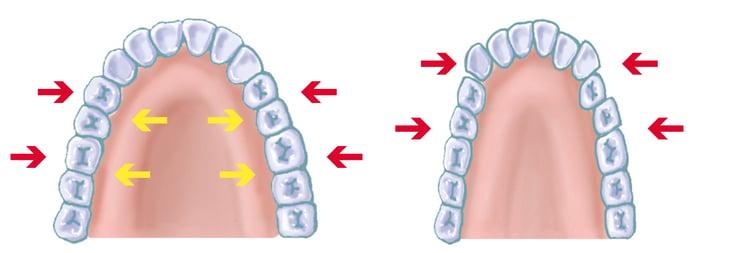 上顎牙弓正常與狹窄差異