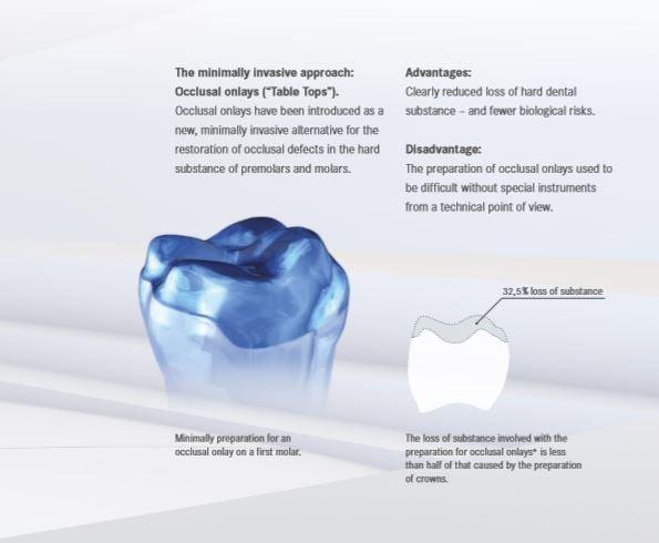 丰采美學牙醫-傳統牙冠修磨牙齒示意圖-30%