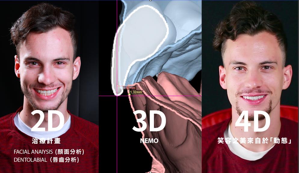 2D到4D的數位微笑設計 馬永昌醫師