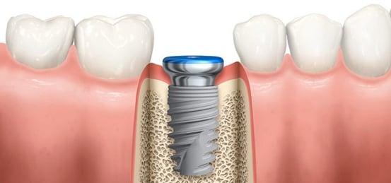植牙過程 丰采美學牙醫診所