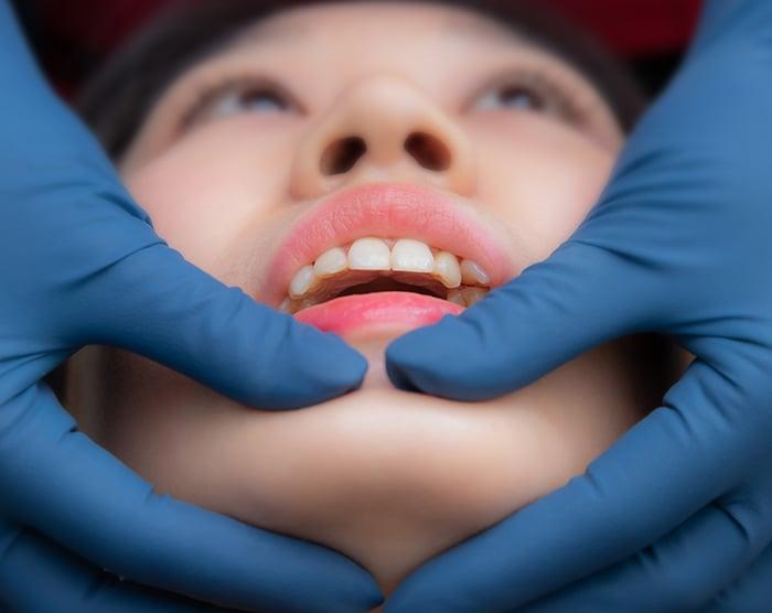 顳顎關節障礙 丰采美學牙醫