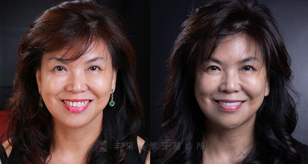 牙齦萎縮顯微牙肉移植與全瓷冠重建
