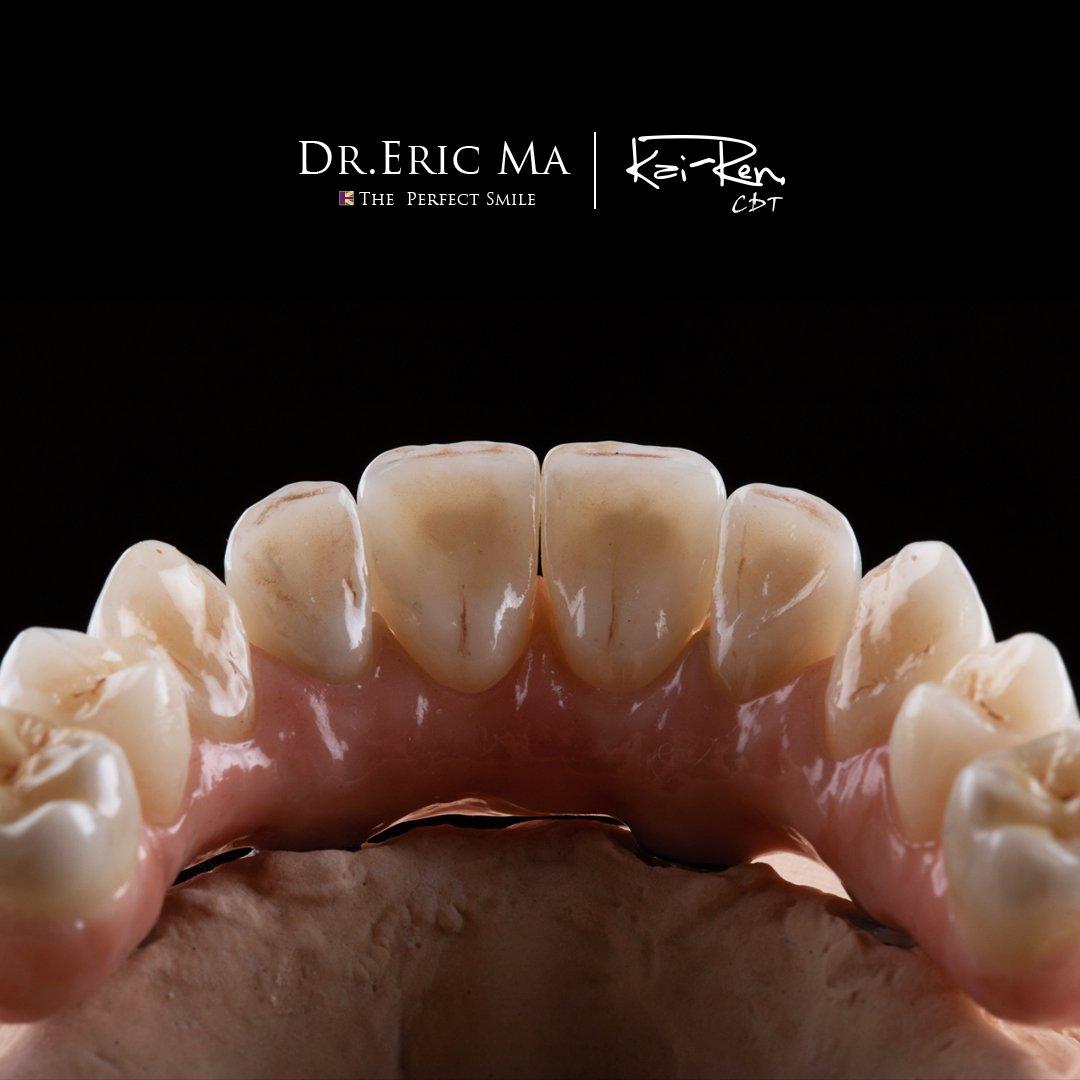 高仿真全瓷植牙|Dr.Eric Ma馬永昌醫師
