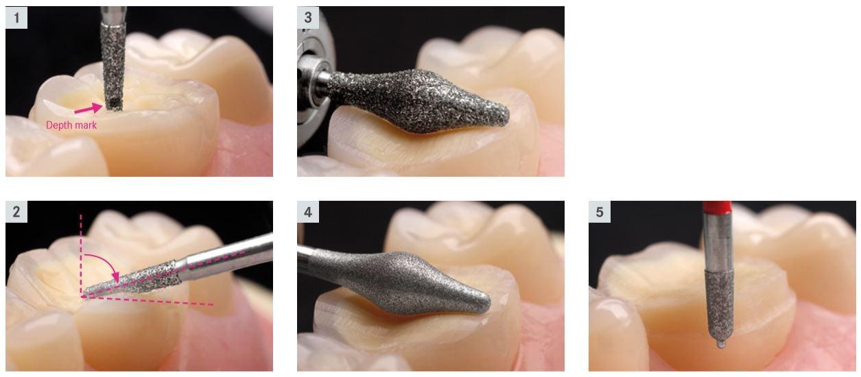 丰采美學牙醫-牙科磨牙使用特殊設計的鑽針器械