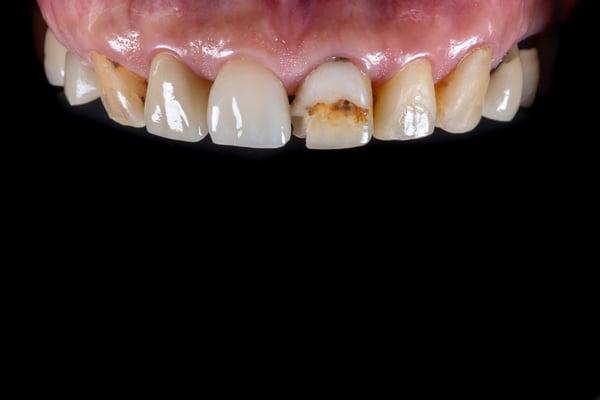 牙齦萎縮的情況