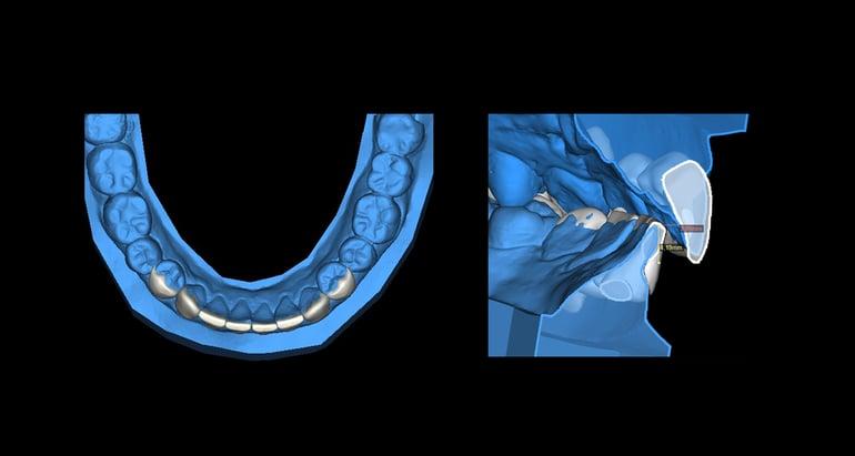 數位瓷牙貼片設計 馬永昌醫師
