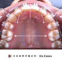 暴牙矯正後 Dr.Emma蔡宜均醫師
