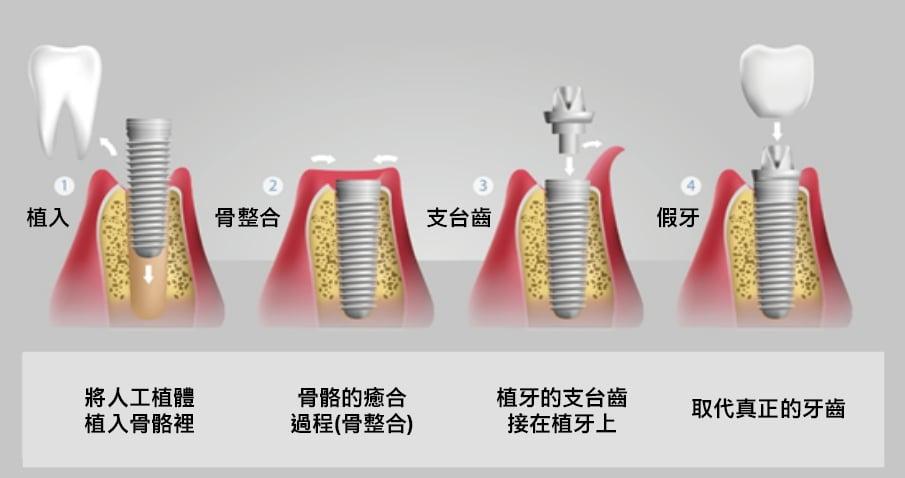 丰采美學牙醫-植牙流程示意圖