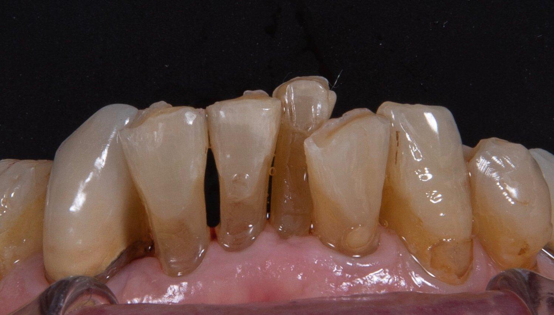 丰采美學牙醫-因長期咬牙(clenching)合併深咬(deep bite)與齒列不整所導致的嚴重齒列磨耗
