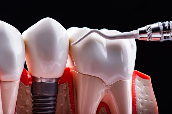 植牙洗牙 丰采美學牙醫