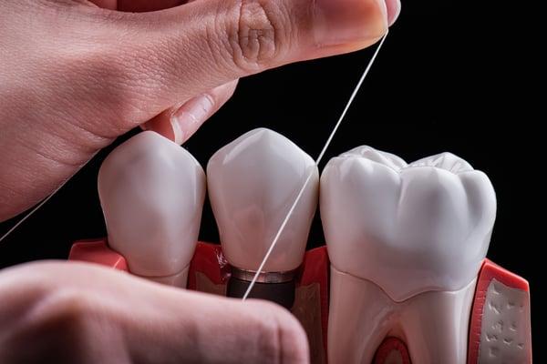 使用牙線預防牙周病