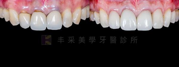 傳統牙肉移植手術