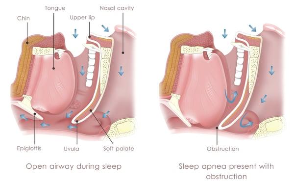 磨牙與睡眠呼吸中止症