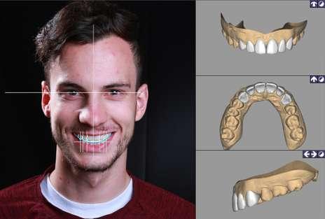 DSD數位微笑設計|Dr.Eric Ma馬永昌醫師