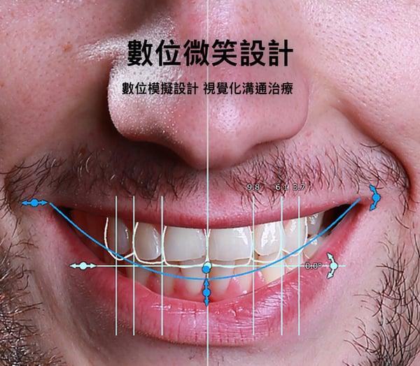 數位微笑設計 馬永昌醫師