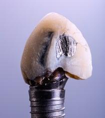 不密合的植牙與假牙會導致牙周病與牙齦萎縮