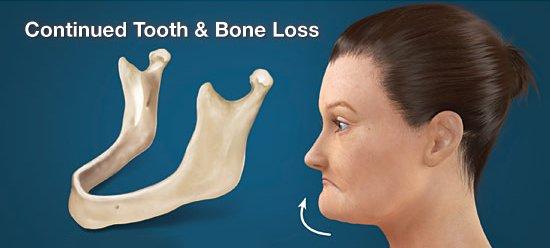缺牙的影響