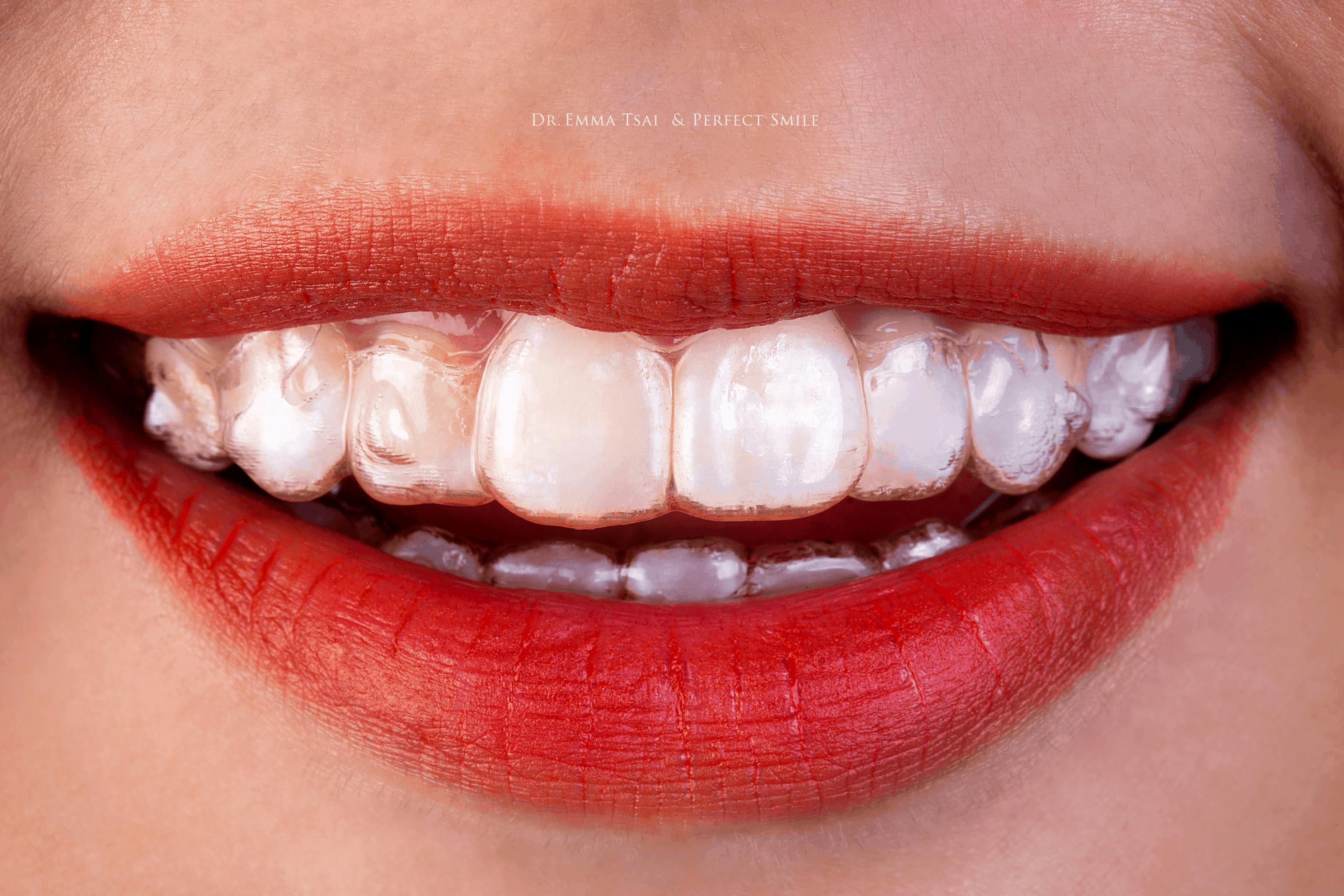 透明牙套近乎隱形不影響外觀