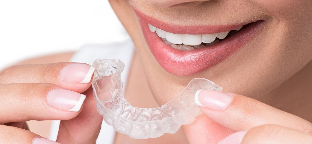 透明隱形牙套