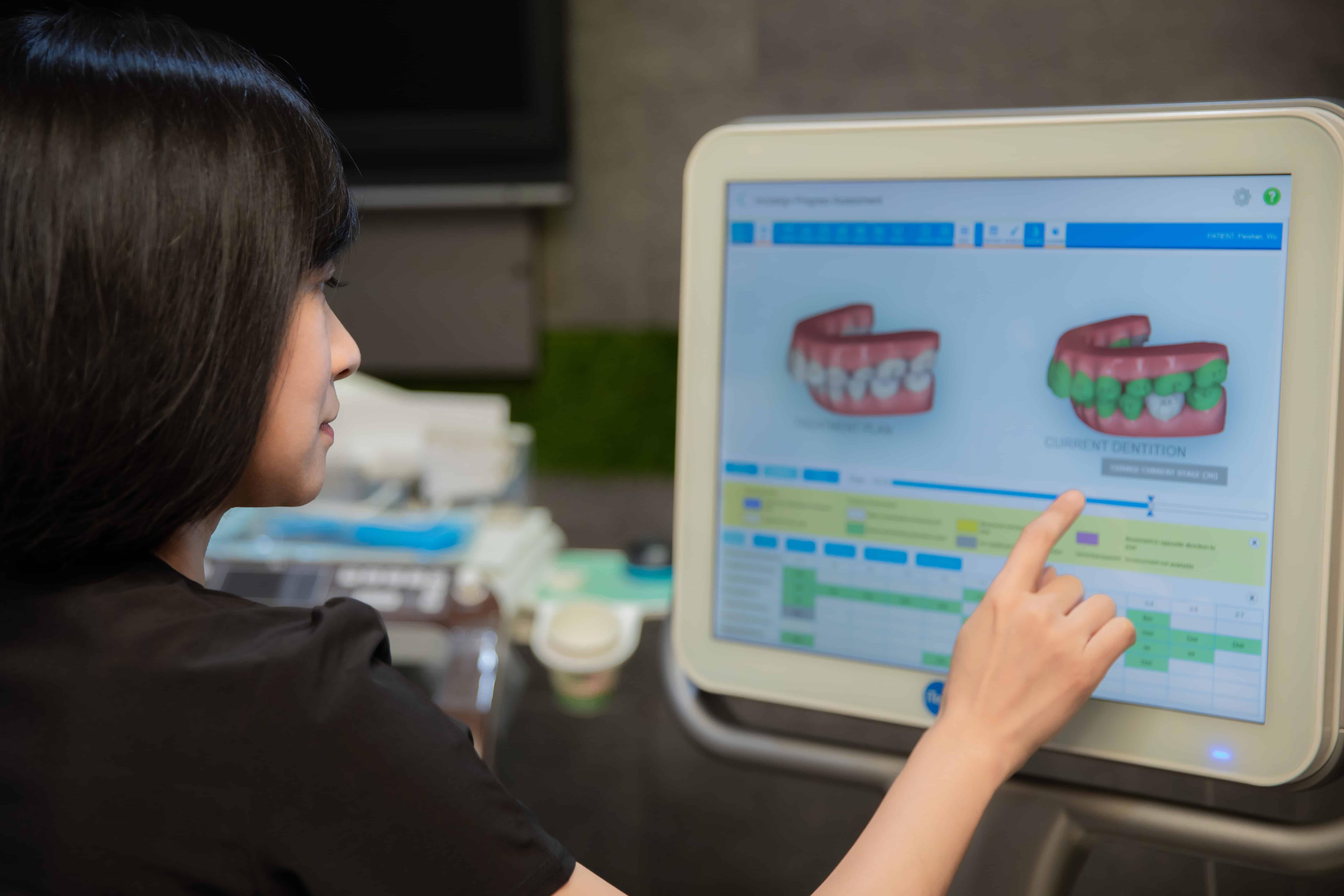 DR.EMMA蔡宜均醫師使用ITERO數位口掃機幫患者做電腦模擬矯正流程
