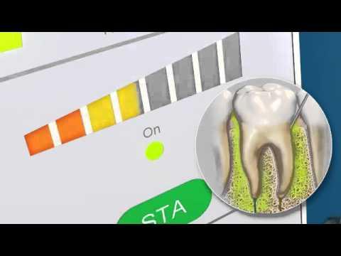 電腦精準控制牙科麻醉劑量