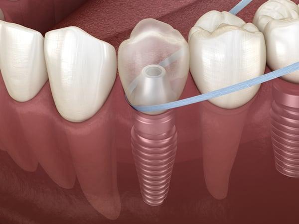 植牙如何用牙線? 丰采美學牙醫