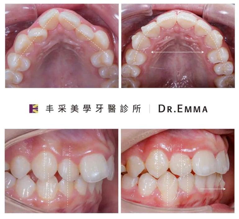 牙齒矯正案例