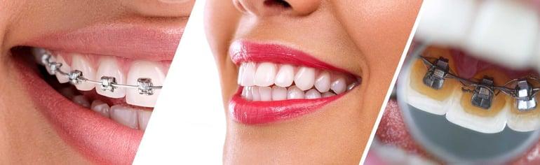 隱形牙套和傳統矯正器與舌側矯正器