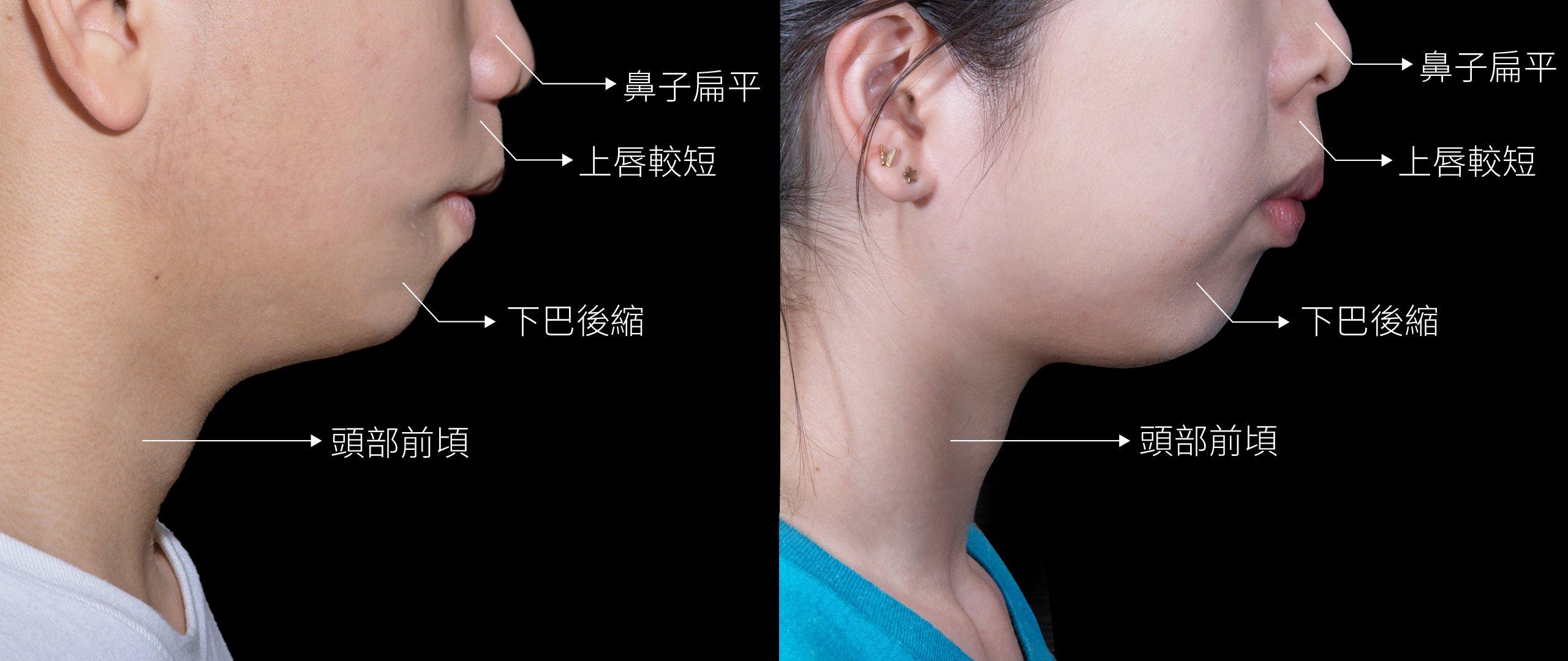 口呼吸長相特徵