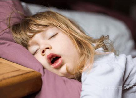 口呼吸與睡眠呼吸中止症孩童常見睡姿