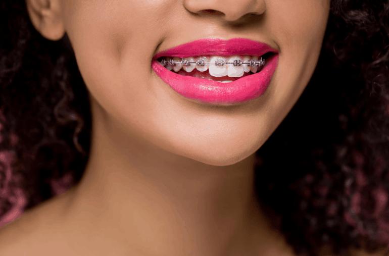 傳統牙齒矯正器