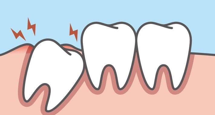 智齒 丰采美學牙醫