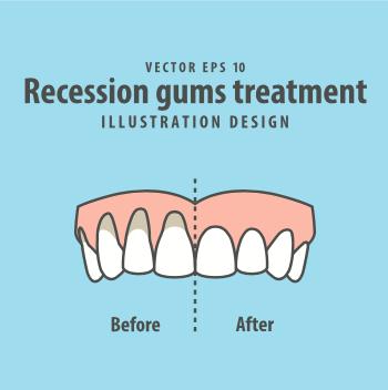 牙齦萎縮的正確處理方式