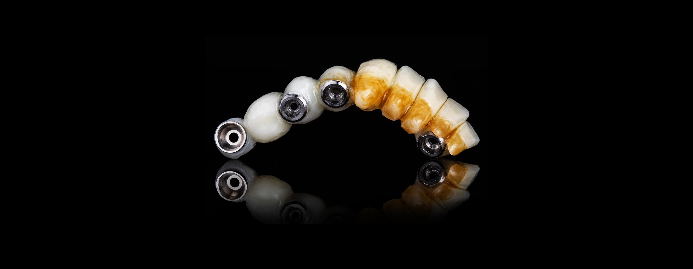 植牙費用|丰采美學牙醫診所