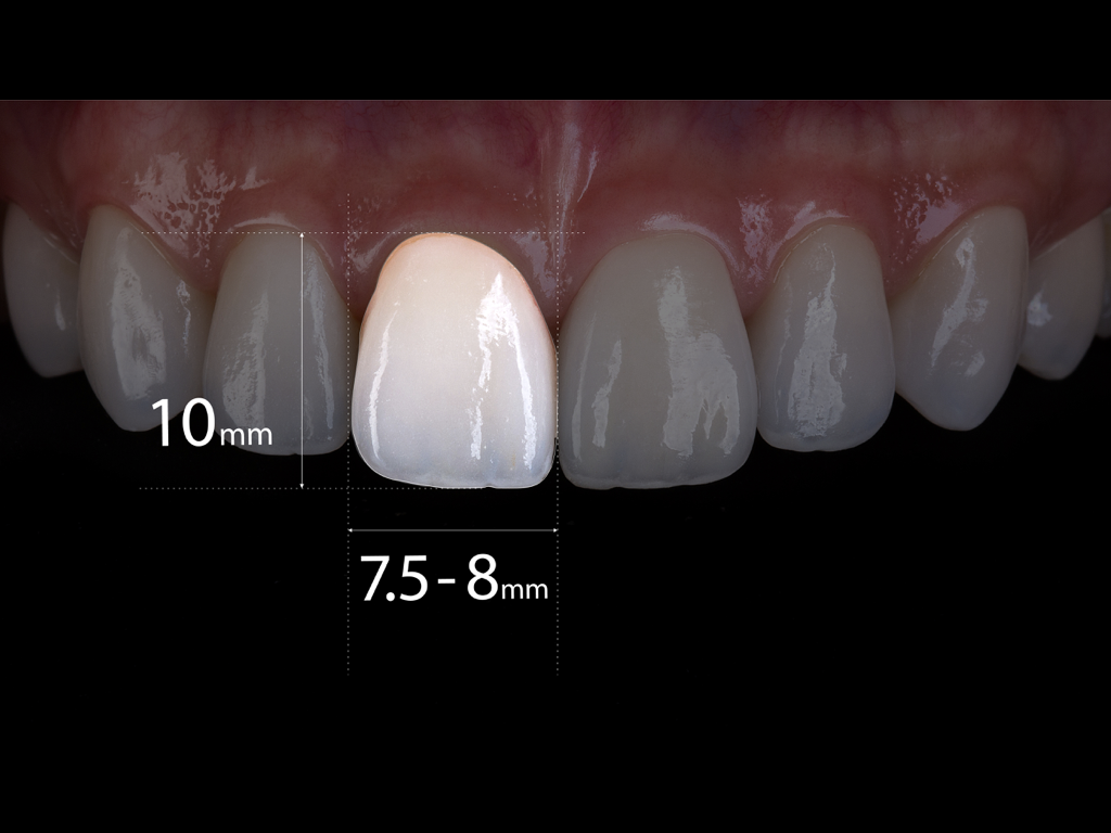 牙齒黃金比例 馬永昌醫師