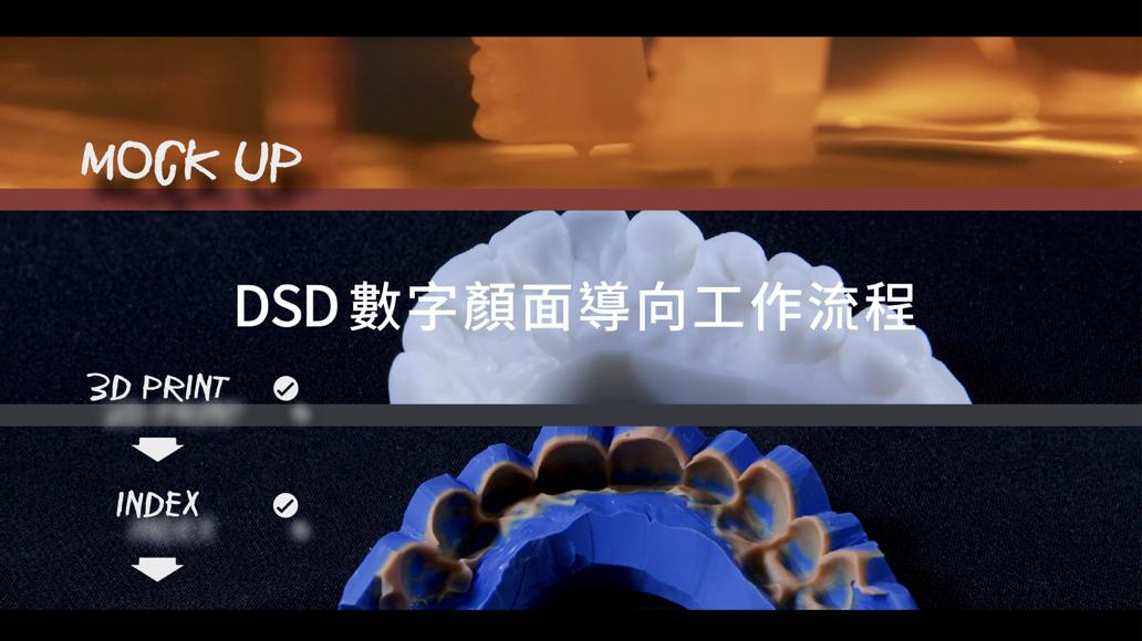 數位微笑設計流程 馬永昌醫師