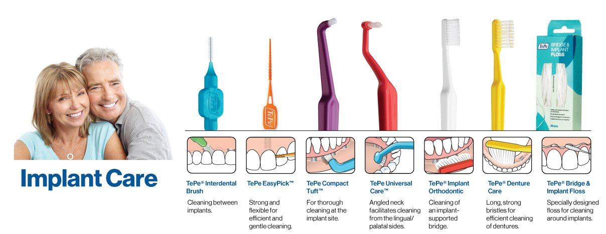 植牙清潔  丰采美學牙醫